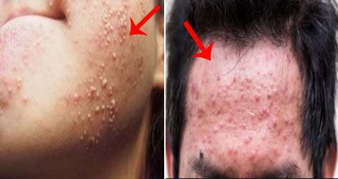 If there is a rash on your face, you must adopt these effective measures once