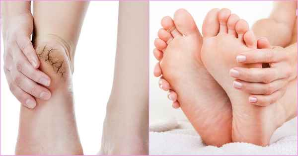 Is cracked heels a common foot problem? Here's how to fix at home